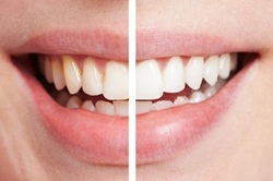 Laser Whitening Brighton Dental